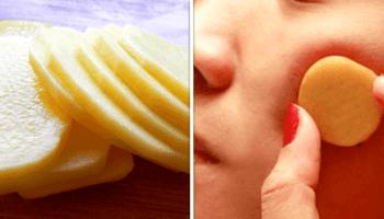 Почему же сырой картофель так невероятно полезен для кожи!