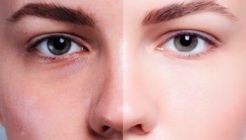 5 отличных способов избавиться от темных точек на лице